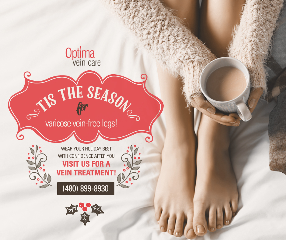 'Tis The Season For Varicose Vein-Free Legs!